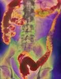 X Ray I